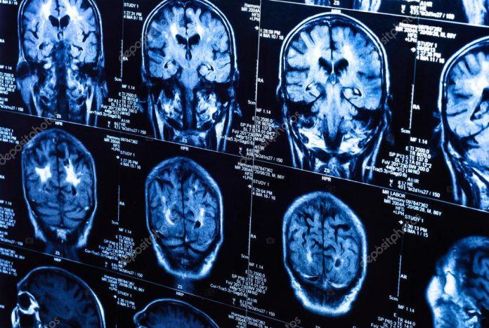 7 способов улучшения роста новых клеток мозга независимо от вашего возраста