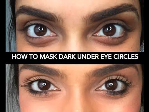 Как скрыть тёмные круги под глазами