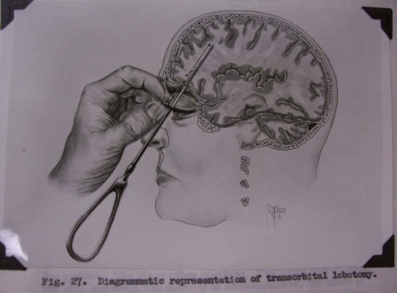 Психические расстройства: делаем лоботомию медицина прошлого, медицинские истории