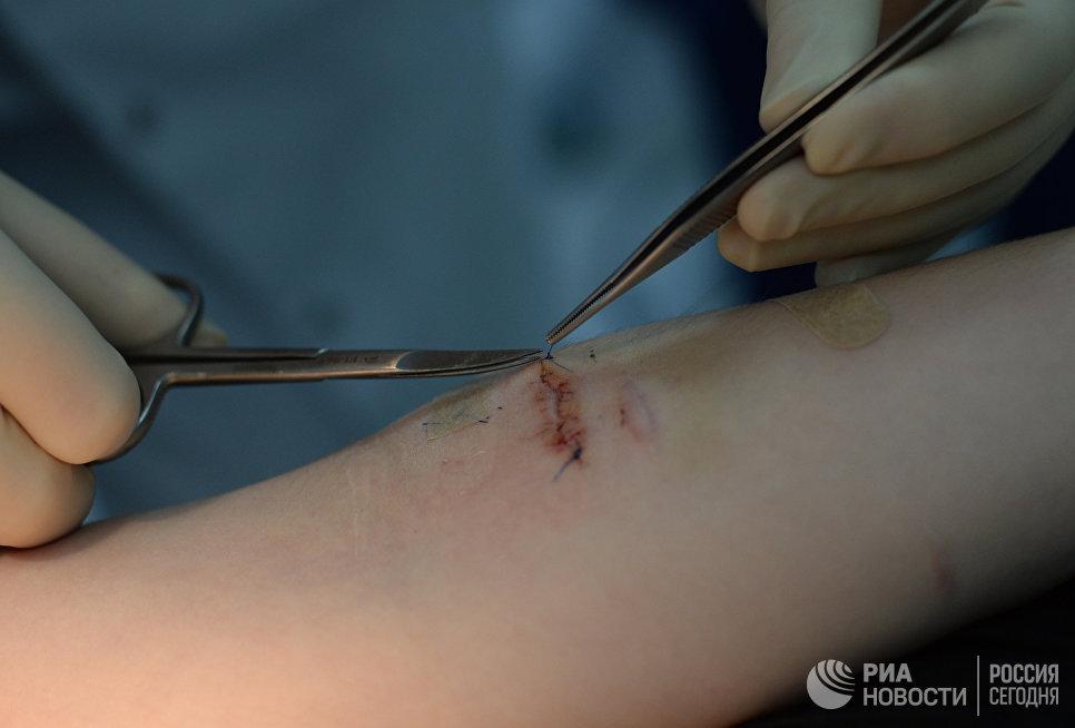 Ученые нашли способ заживления ран без шрамов