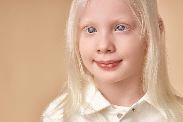 Что такое альбинизм