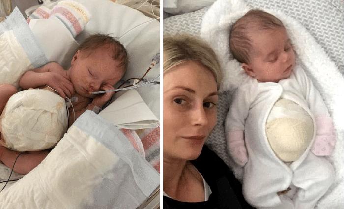 Девочка родилась с внутренними органами наружу, но родители решили не отказываться от нее
