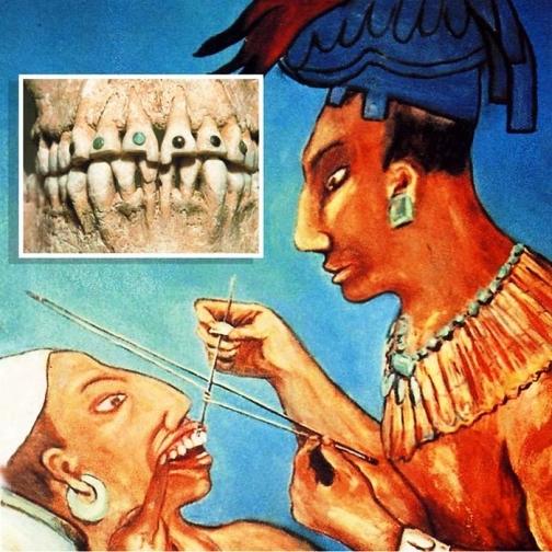 Боитесь похода к стоматологу? Сравните, как это делалось в древности!