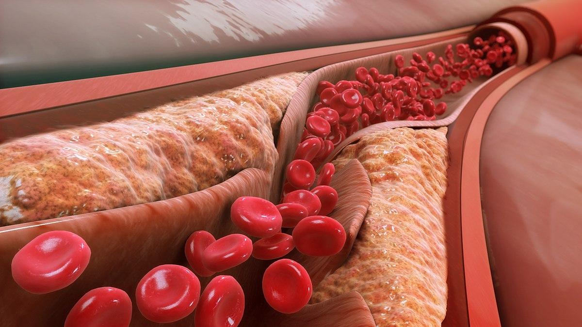 Простой «бабушкин» рецепт для очищения крови и сосудов. Выводит все вредное!