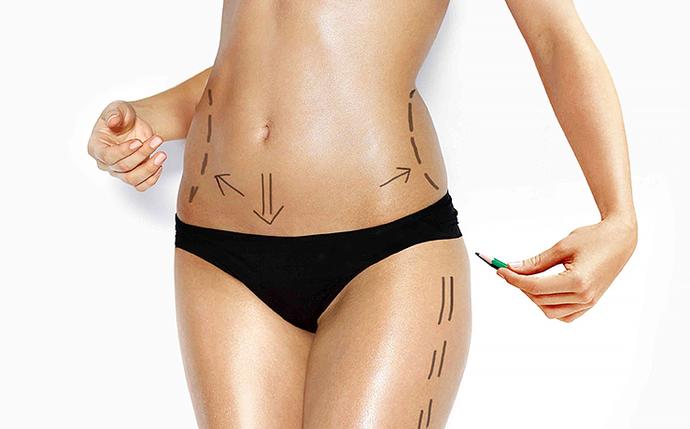 Жировые «ловушки»: что делать, если похудеть не помогают ни фитнес, ни диета?