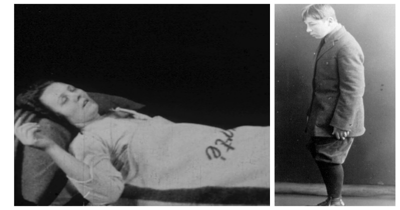 Эпидемия сонной болезни: странная хворь, которая превращала людей в живых зомби