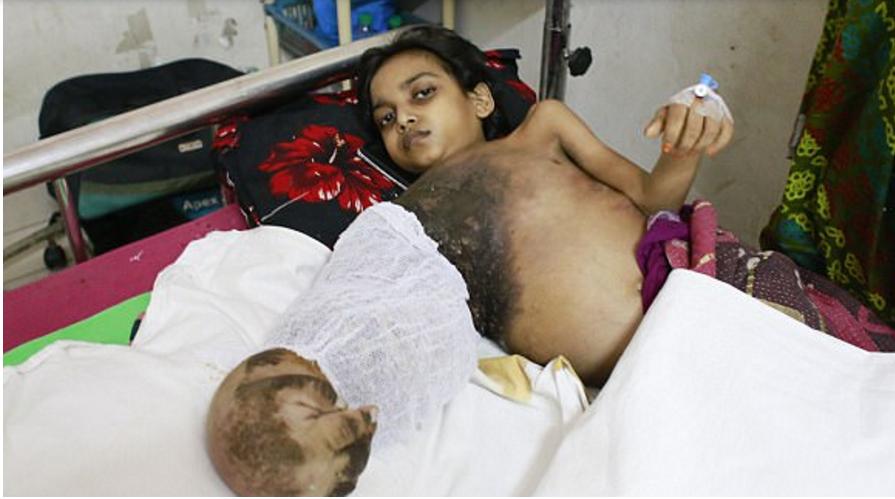 """""""Синдром дерева"""" поразил девочку из Бангладеша"""
