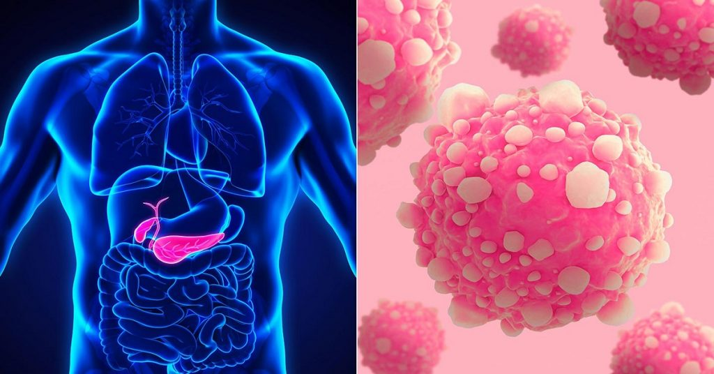 Все, что вам нужно знать о раке поджелудочной железы