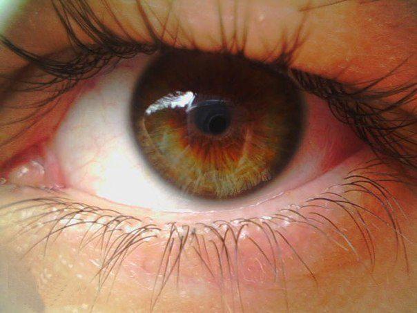 Дистрофия сетчатки глаза: симптомы, народные рецепты для лечения