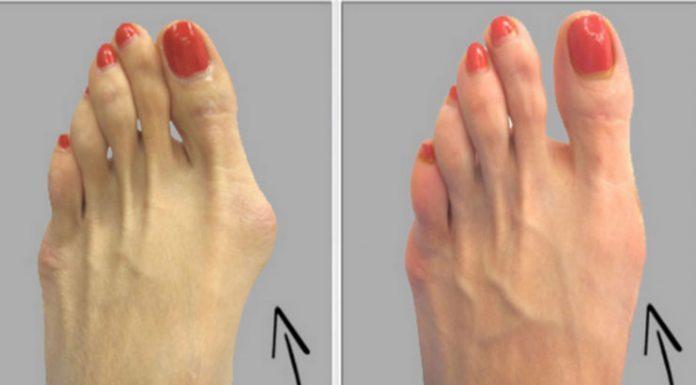 Для этого Вам не нужно хирургии: избавиться от бурсита большого пальца стопы естественно, используя только один ингредиент!
