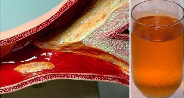 Я чуть не умер от сердечного приступа из-за закупоренных артерий и этот напиток помог мне очистить их