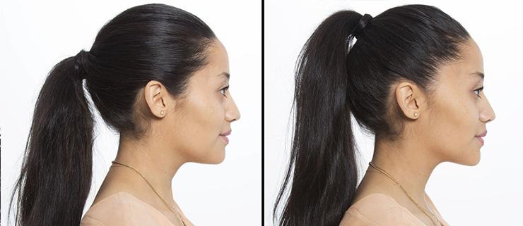 как сделать лицо визуально меньше фото