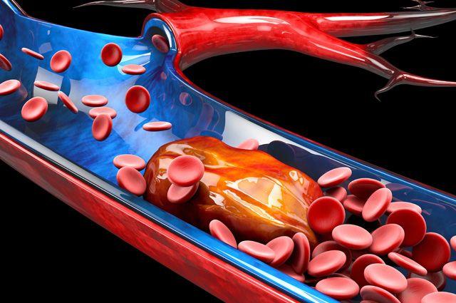 Бессимптомные проявления атеросклероза