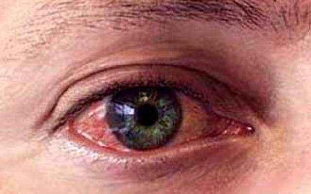 Как снять воспаление с глаз после сварки