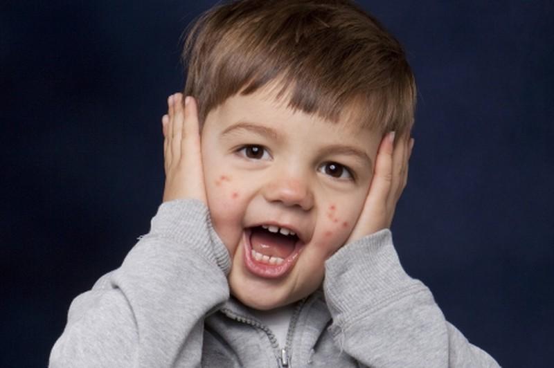 Сыпь на теле ребенка: лечим …