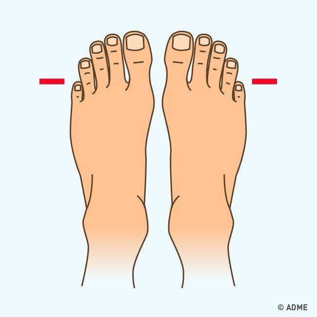 Что могут рассказать о вас ваши ноги