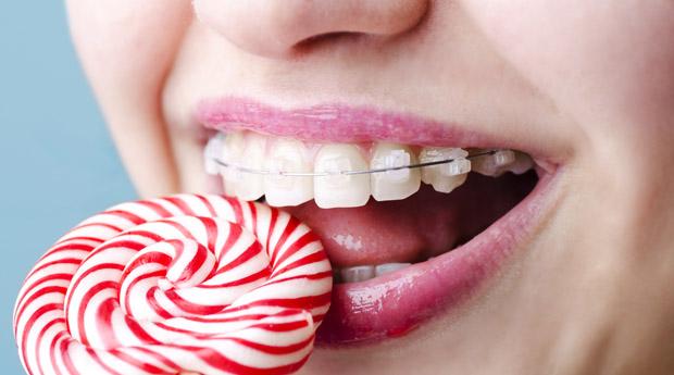 Выравниваем зубы: основные виды брекетов