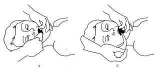Техника искусственной вентиляции легких рот-ко-рту или рот-к-носу