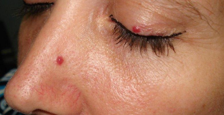 Чем опасны красные точки на теле?