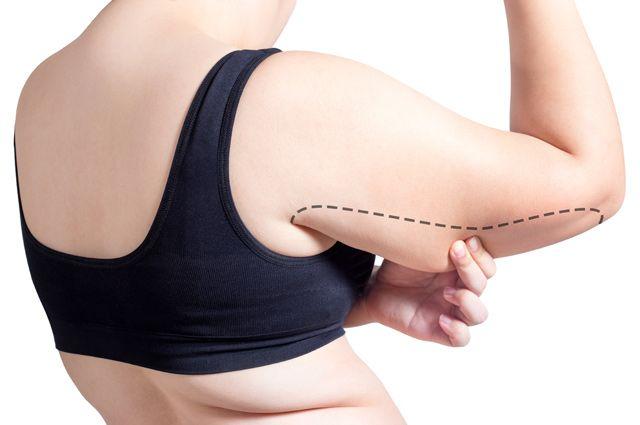 Как бороться с обвисаниями кожи на руках