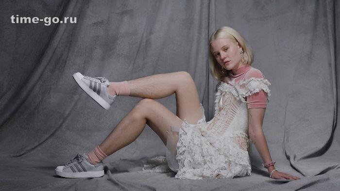 Эта реклама обуви Adidas выз…
