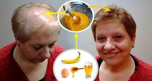 Рецепт для лучшего роста волос: врачи в шоке от его эффекта