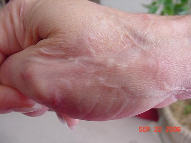 Болезнь моргеллонов: Атака нанороботов?