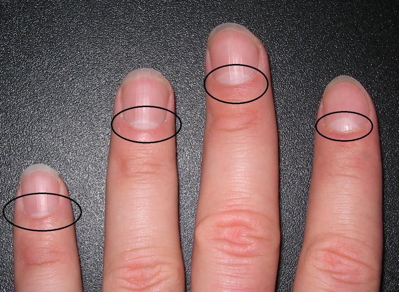 Есть ли у Вас так называемый «полумесяц» на ногтях? Узнайте, о чем это свидетельствует
