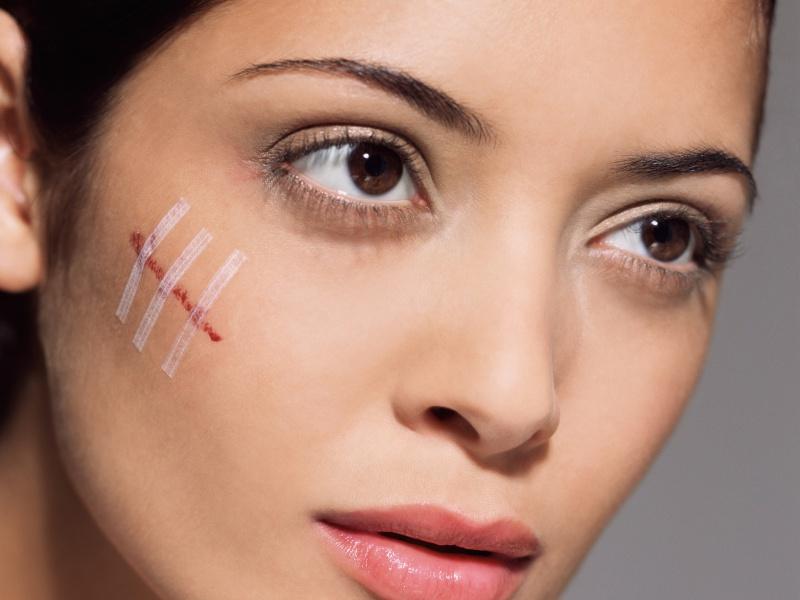 Как избавиться от шрамов в д…