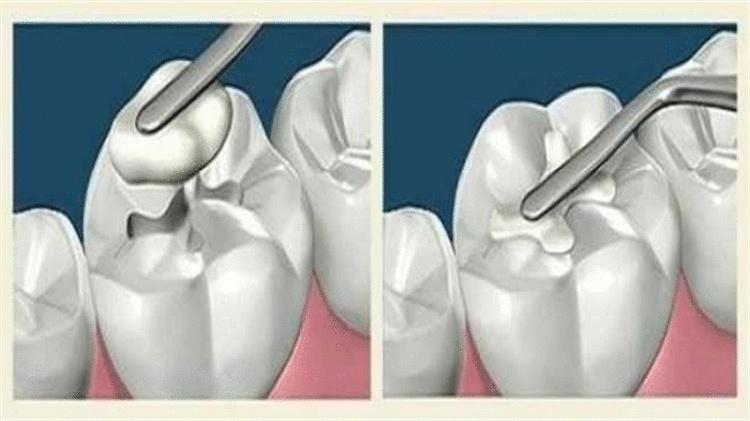 Ученые изобрели вечную пломбу, которая сама будет лечить зуб