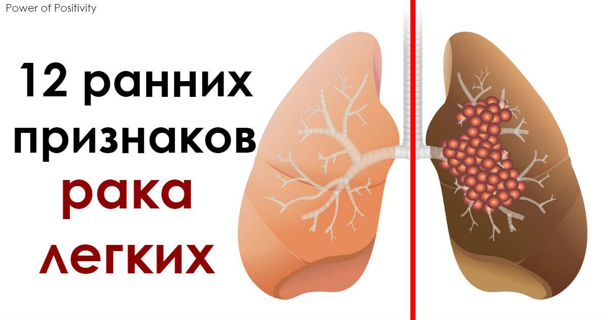 12 ранних признаков рака лёгких, которые нельзя игнорировать