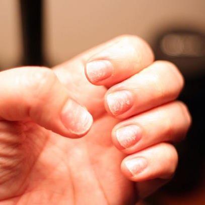 Легкие способы лечения отслаивания ногтей