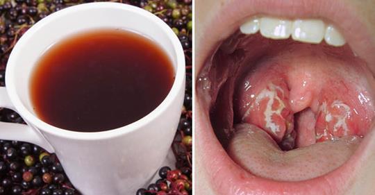 Стрептококк горла: 10 натуральных средств