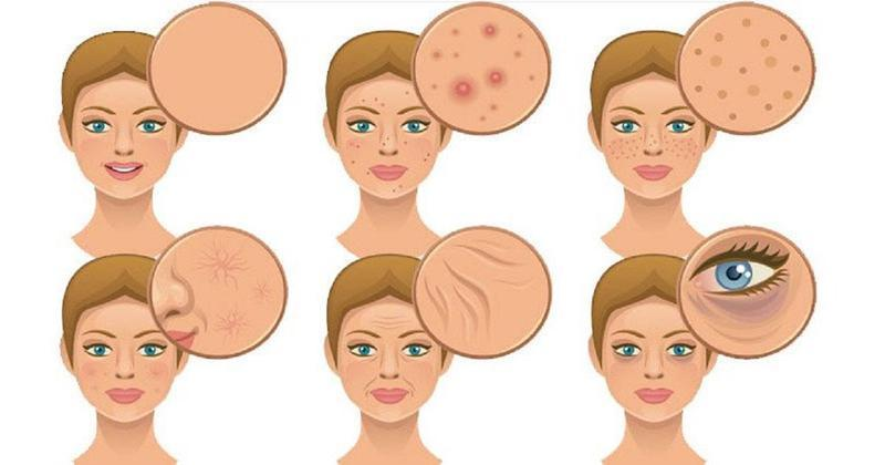 5 вредных пищевых привычек, из-за которых кожа лица выглядит плохо