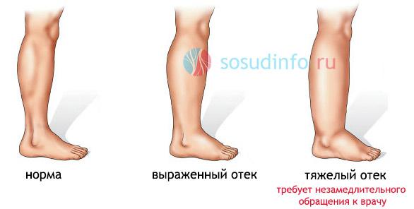 Как снять отек с ног при беременности