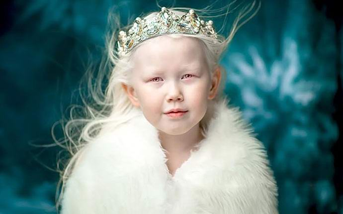 Якутская девочка-альбинос очаровала Интернет