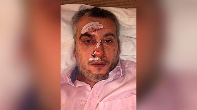 Получившего серьезные травмы ведущего НТВ ночью выставили из больницы в Мюнхене
