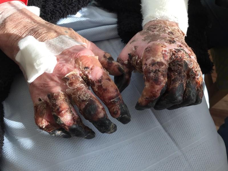 Собака облизала открытую рану этого человека болезни фото, жизненно, истории, кошмар, медицина, факты
