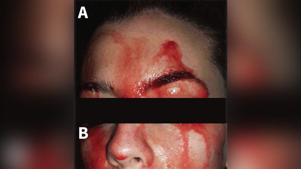 Итальянские врачи рассказали о девушке, «потеющей кровью»