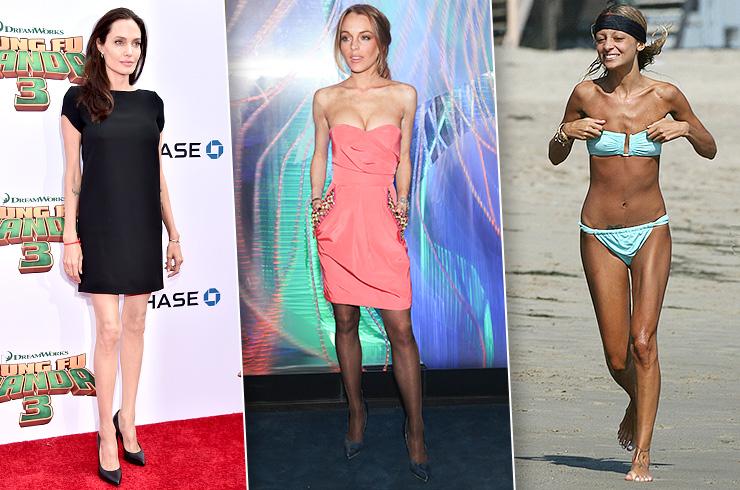 Анджелина Джоли, Тара Рид и другие звезды, которые победили анорексию и булимию