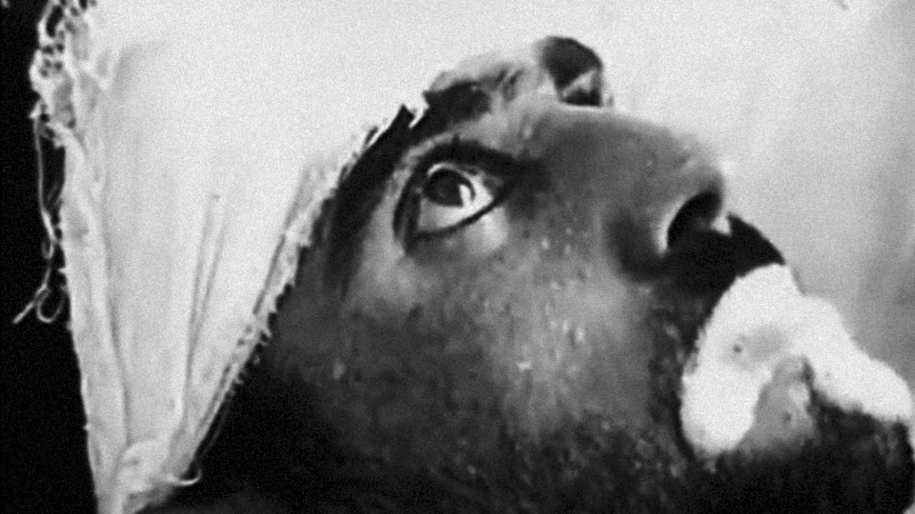 «Если диагностируют бешенство». Самые страшные смерти людей за всю историю