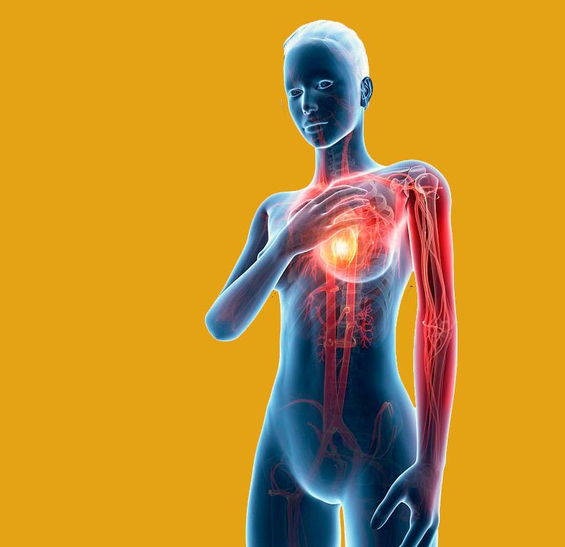 Ранние признаки сердечного приступа, которые женщины часто игнорируют