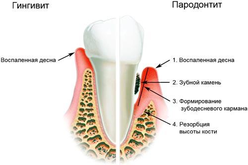 При беременности очень болят зубы что делать