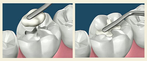 Революция в стоматологии