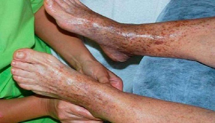 Эффективные советы о том, как решить проблему плохой циркуляции крови
