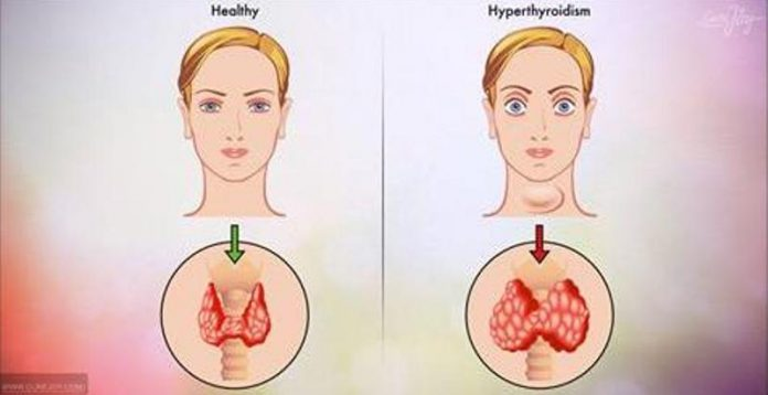 Причины возникновения гипертиреоза