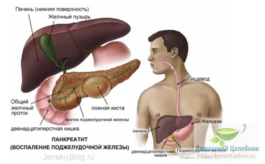 Три важных народных средства для лечения поджелудочной железы