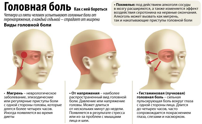 Болит голова как лечить народными способами