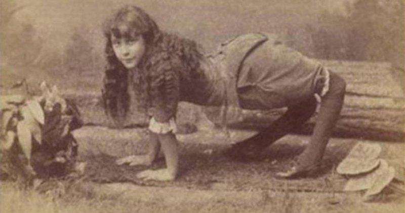 «Девочка-верблюд»: подлинная история Эллы Харпер Элла Харпер, болезнь, история, люди, удивительно, цирк