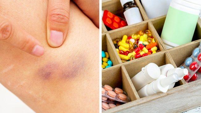 Проблемы, о которых могут сообщать беспричинные синяки на теле